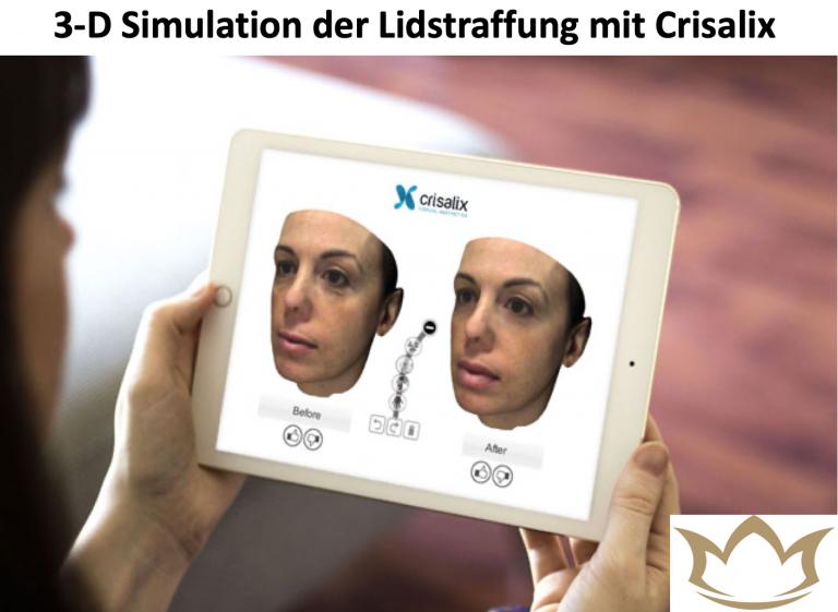 Crisalix 3 D Lidstraffung Simulation