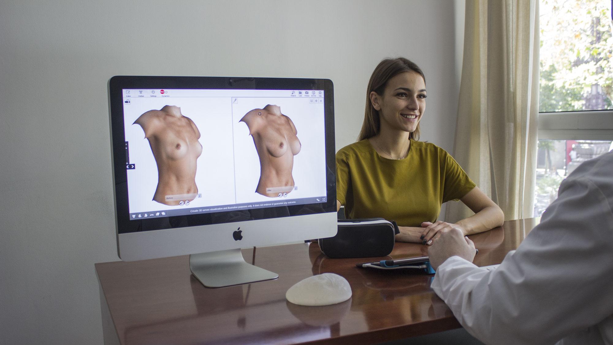 Frau bei einem Beratungsgespräch zur Brustvergrößerung neben einem PC-Monitor mit der 3D Darstellung durch Crisalix