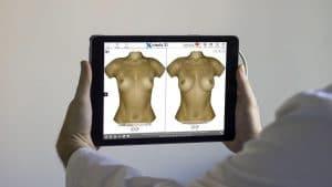 Das spätere Ergebnis der Brustvergrößerung kann mit dem Crisalix 3 D Programm simuliert werden