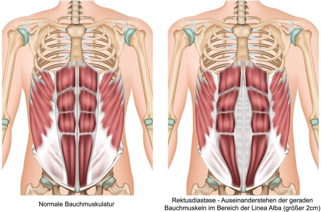 Grafische Darstellung einer Rektusdiastase im Vergleich zu normalen Bauchmuskeln.
